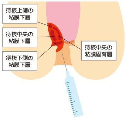 切らない痔の手術ジオン注射